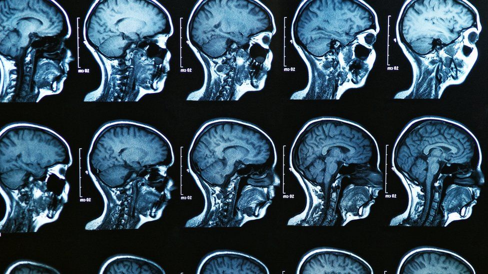 Images from an MRI scan