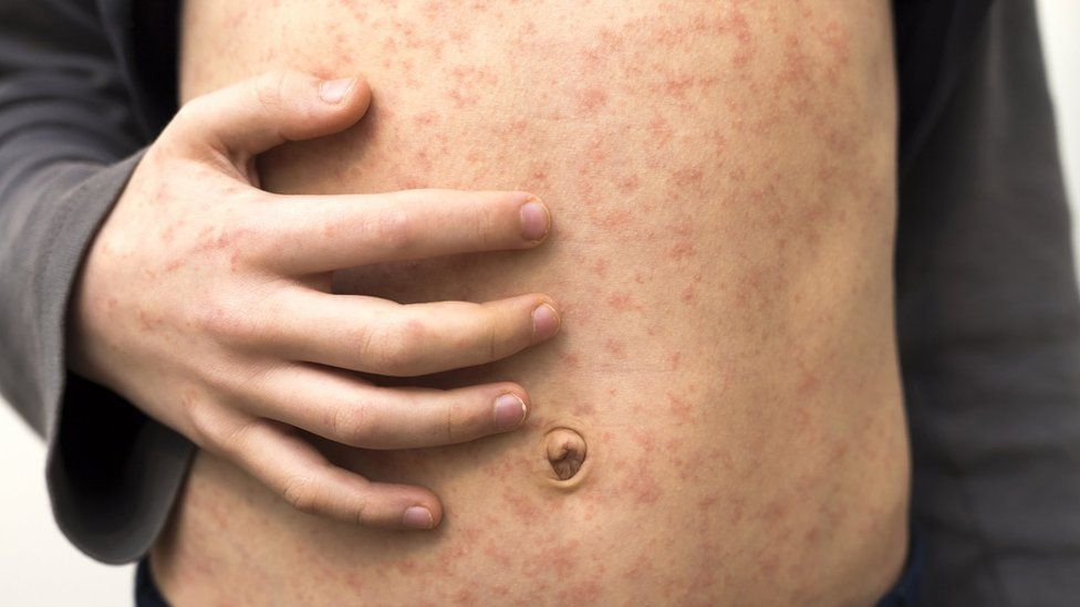 Measles deaths 'staggering and tragic'