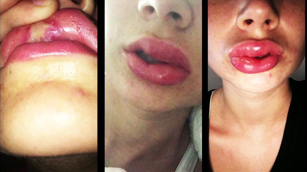 Images of injuries sustained during teeth-whitening