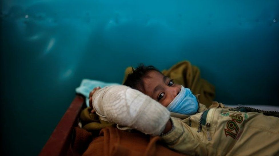 Rohingya refugee Yasin Arfat, 6, who suffers from diphtheria, lays on a bed