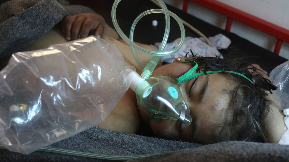 File photo taken on 4 April 2017 shows a Syrian child receiving treatment at a hospital in the town of Maarat al-Numan following a suspected Sarin attack in Khan Sheikhoun