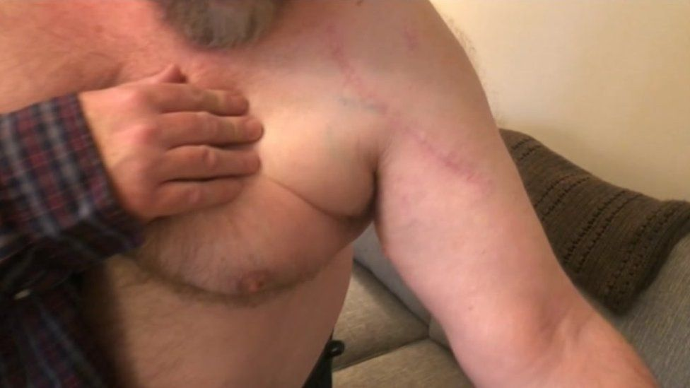Graham Budd's scar on his shoulder from the knife attack