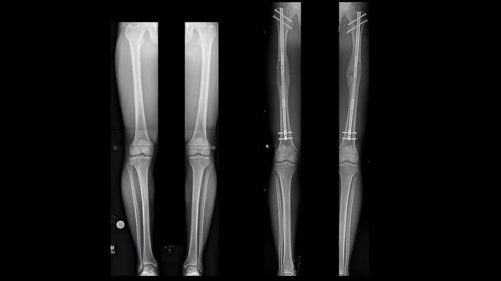 X-rays of Sam's legs before and after (right) the operation
