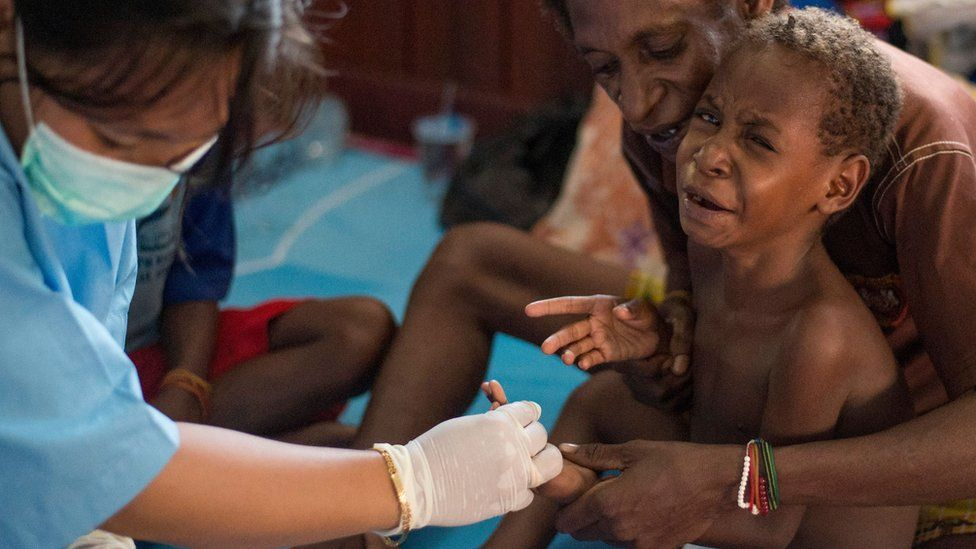 Papua, health, Indonesia, measles, malnutrition