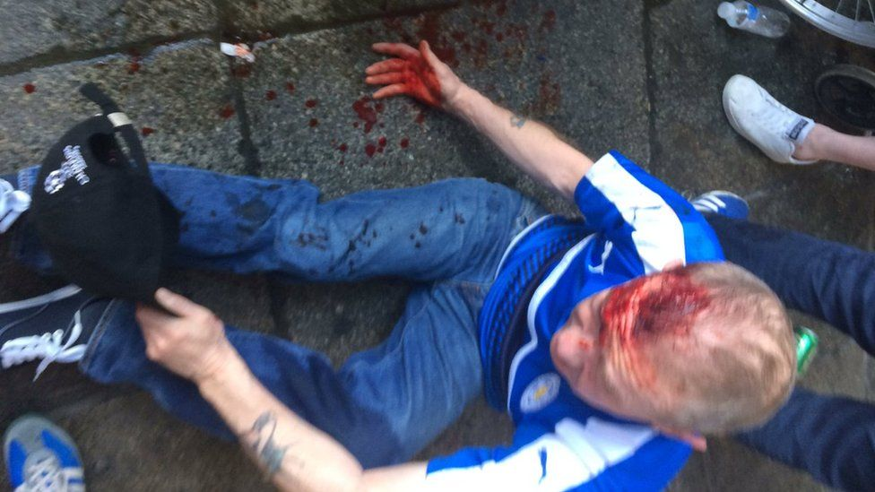 Injured Leicester City Fan