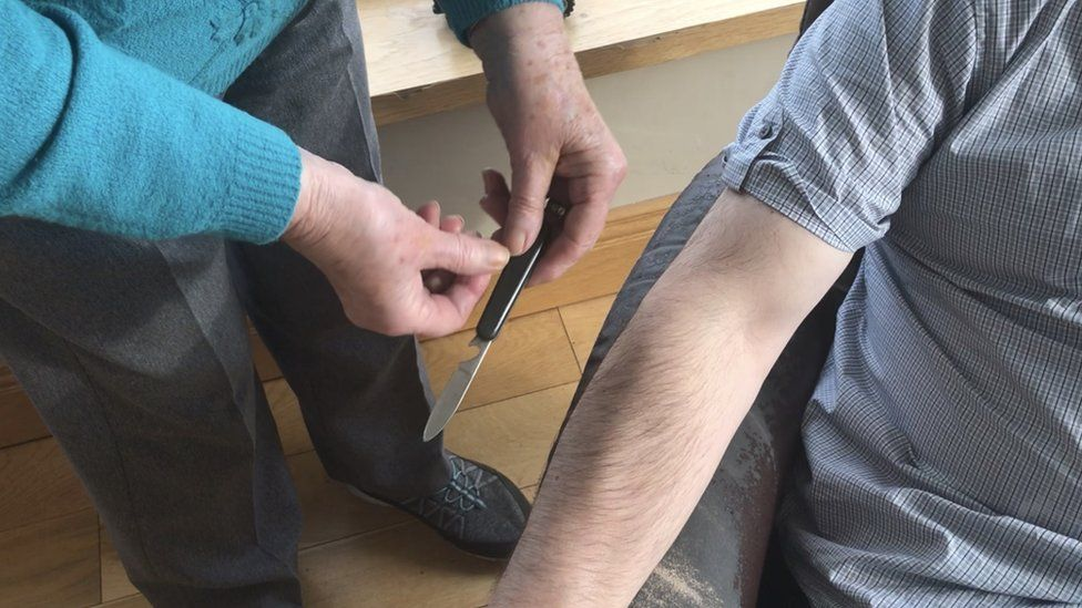 Rebecca holding a penknife used in her cure for shingles