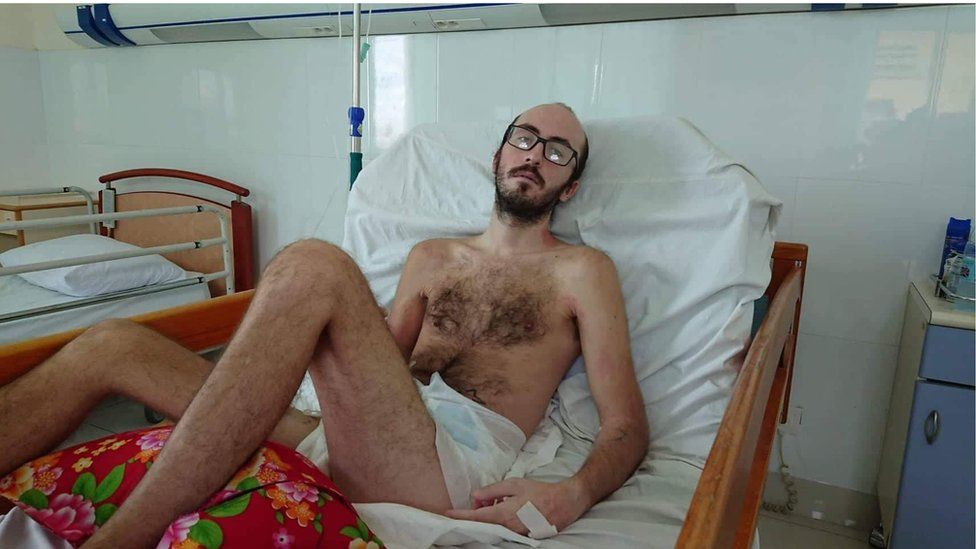 Calvin looking thin in a hospital bed