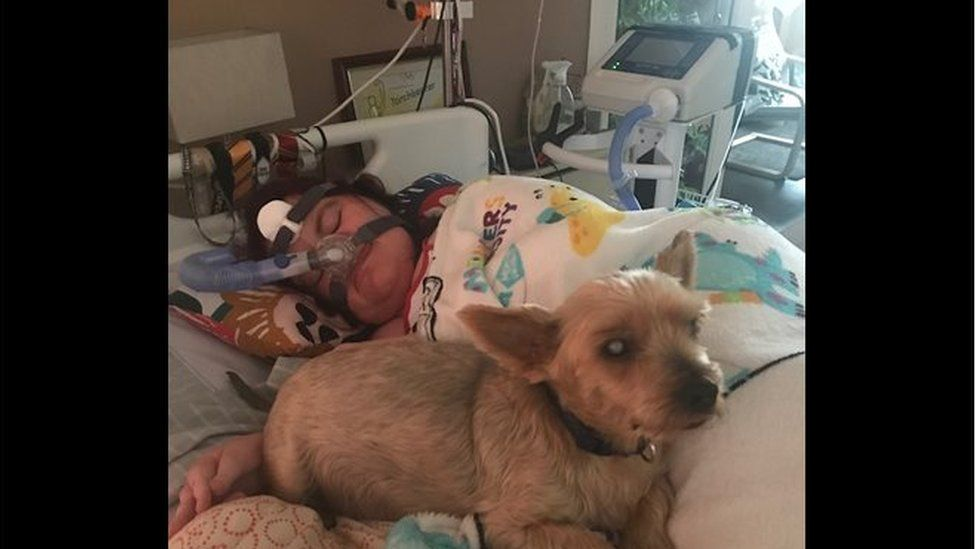 Michaela in bed and using a ventilator while her dog Charlie lies next to her