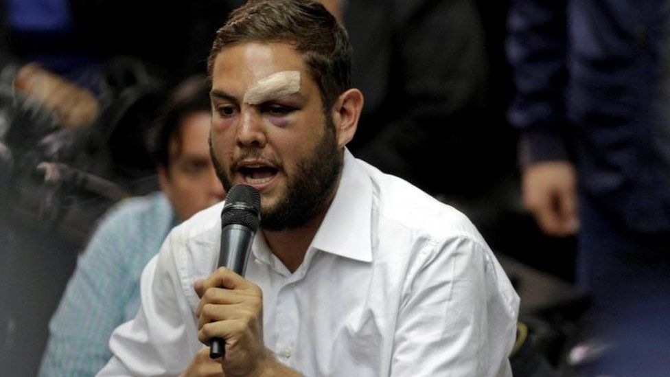 Juan Requesens, deputy of the Venezuelan coalition of opposition parties (MUD), speaks during a session of the National Assembly in Caracas, Venezuela April 5, 2017