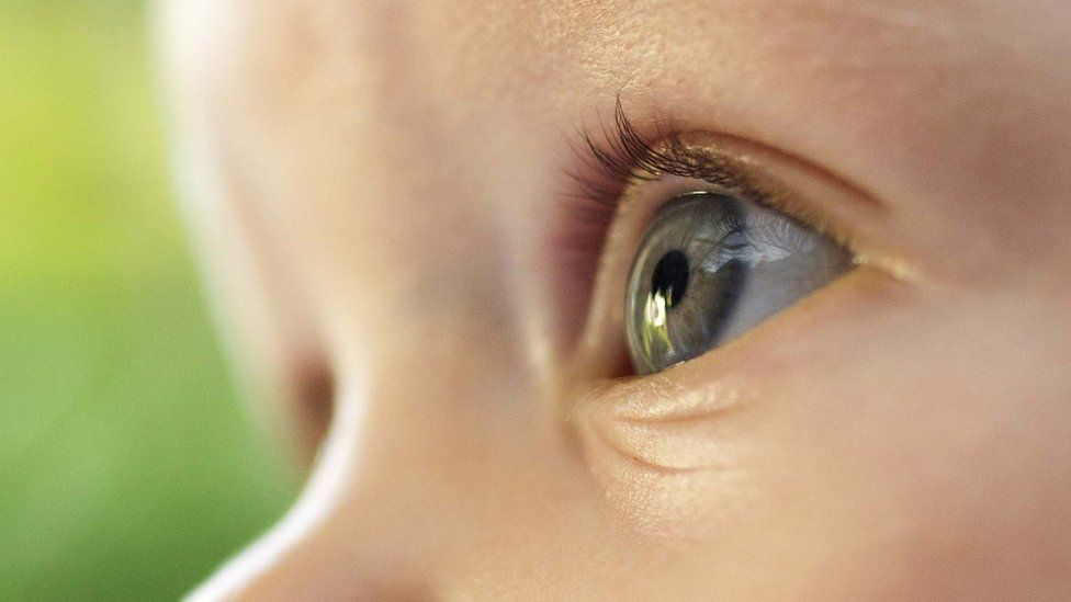 Flipboard: Blind children battling rare condition to have ...