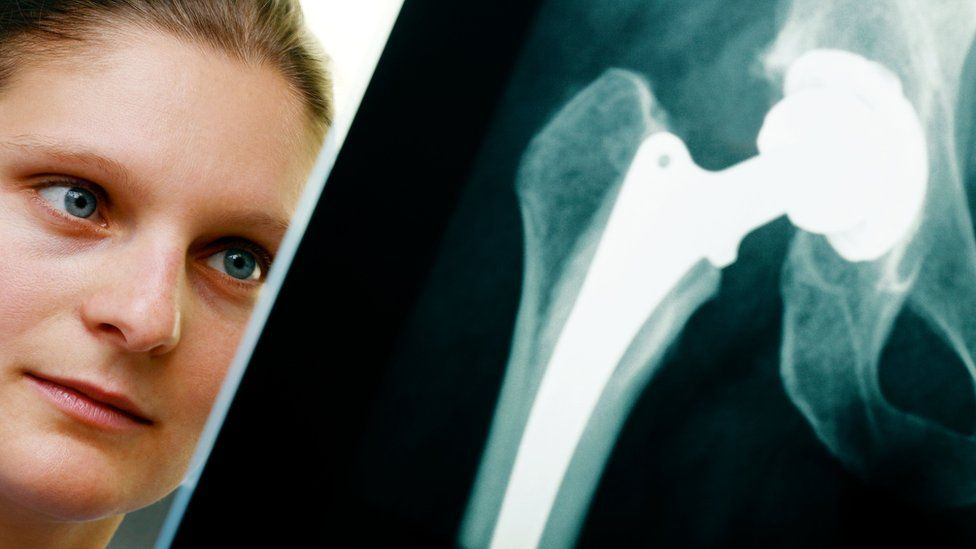 woman studying x-ray of hip replacement
