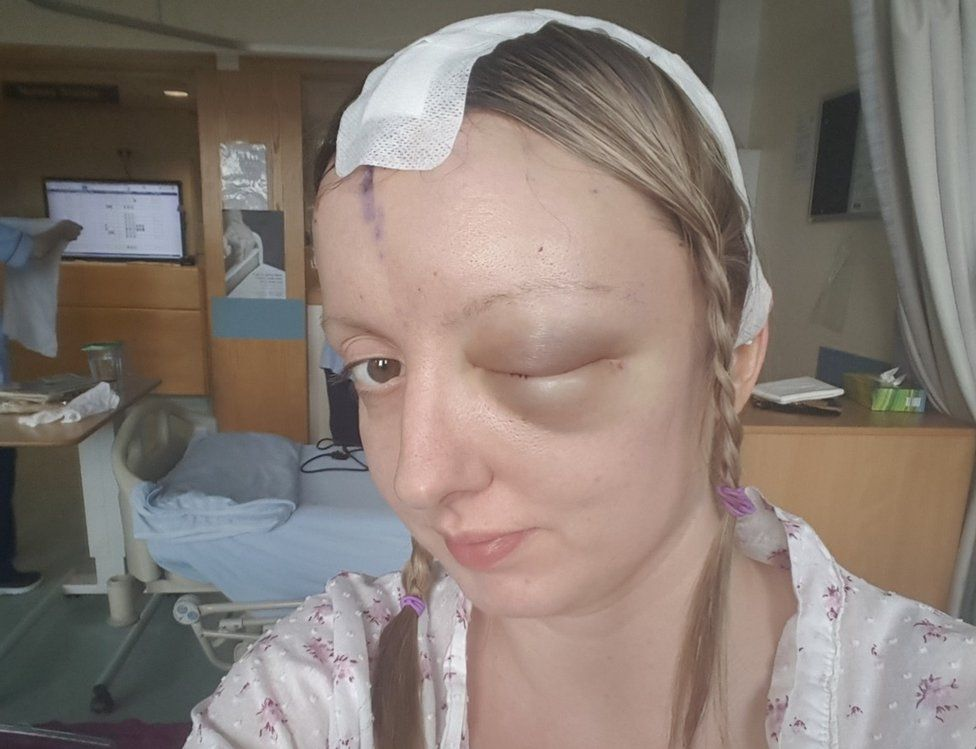 Sarah-May after her surgical procedure