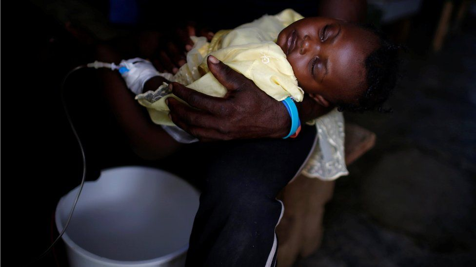 Sleeping infant with drip, over bucket, at the cholera treatment centre at the hospital after Hurricane Matthew passes in Jeremie, Haiti, October 9, 2016