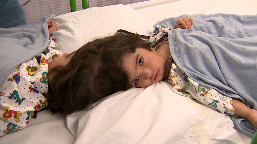 A longa batalha dos médicos para separar irmãs siamesas ligadas pela cabeça