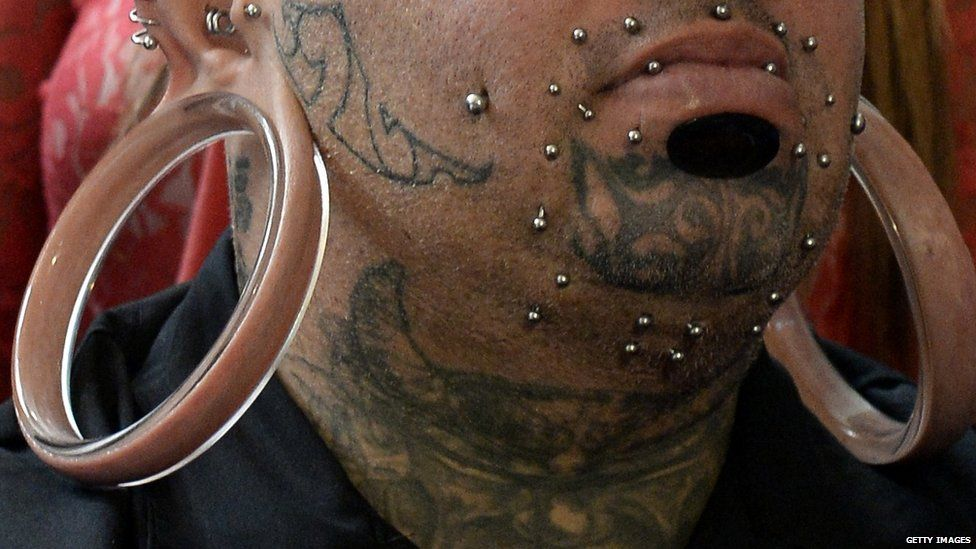An extreme example of ear-stretching or 'flesh tunnels'