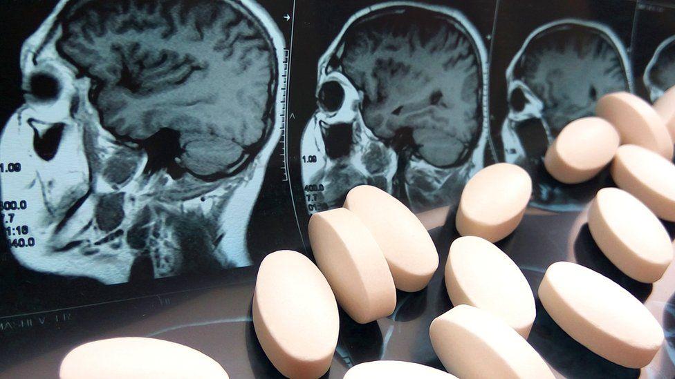 Зловещий парацетамол и другие таблетки: как они меняют нашу личность