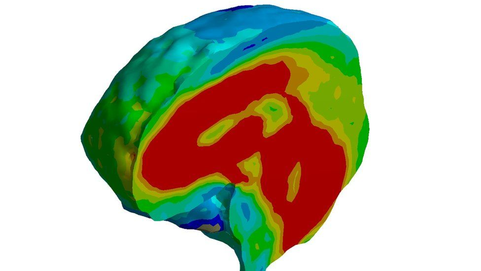 A picture of the brain 10 milliseconds after impact. High stress regions show up in red