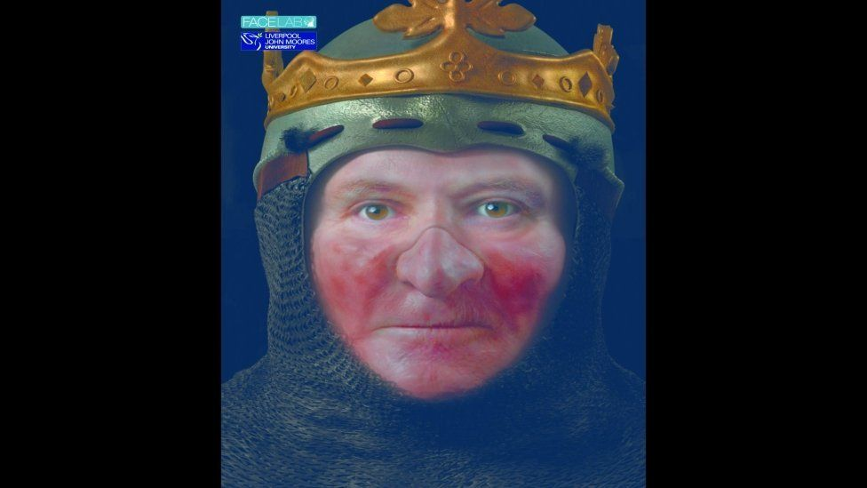 Robert the Bruce is thought to have had leprosy before his death