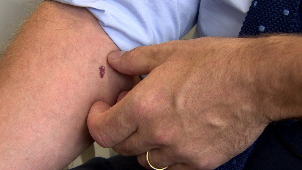 the fake melanoma tattoo is shown on an arm