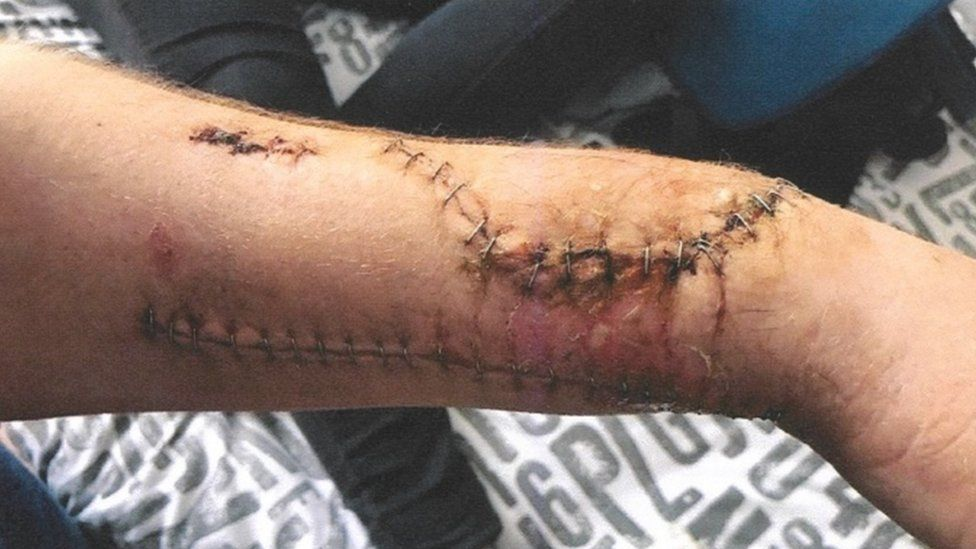 Wound suffered by Cameron Brooksbank