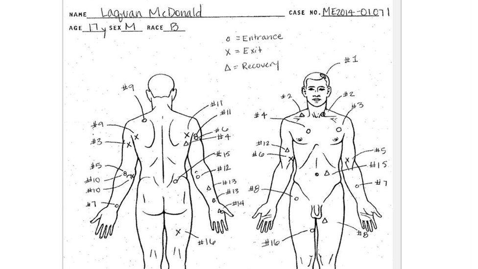 A diagram from McDonald's autopsy