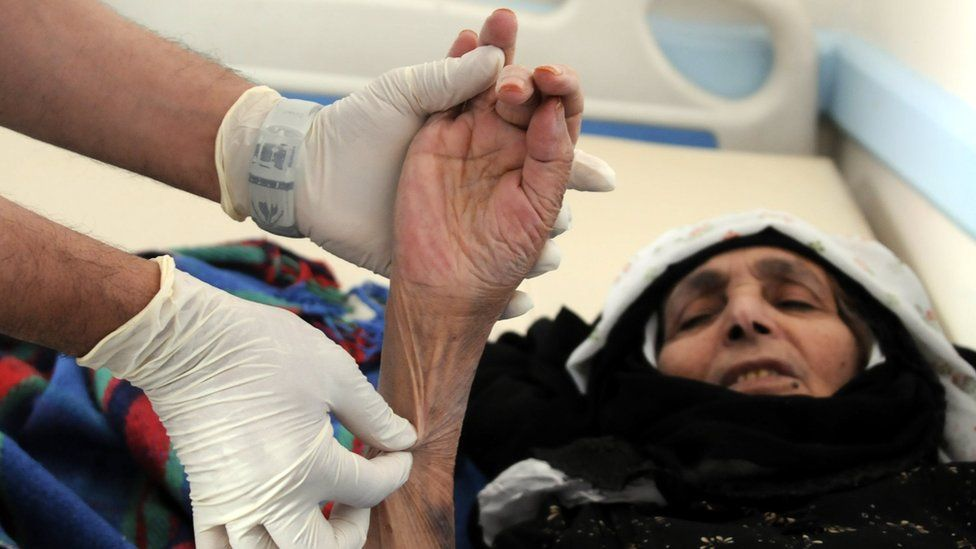 A woman suspected of being infected with cholera receives treatment at a hospital in Sanaa, Yemen (6 June 2017)