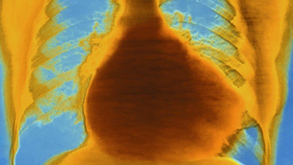 heart failure x-ray