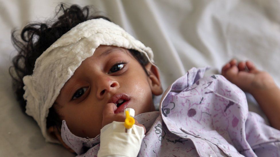A Yemeni child lies on a bed after receiving treatment for malnutrition at a treatment centre in a hospital in the third city of Taez in the country's southwest on November 21, 2018