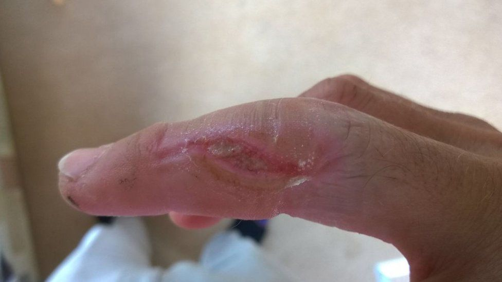 Image of injuries to James Andrews's finger
