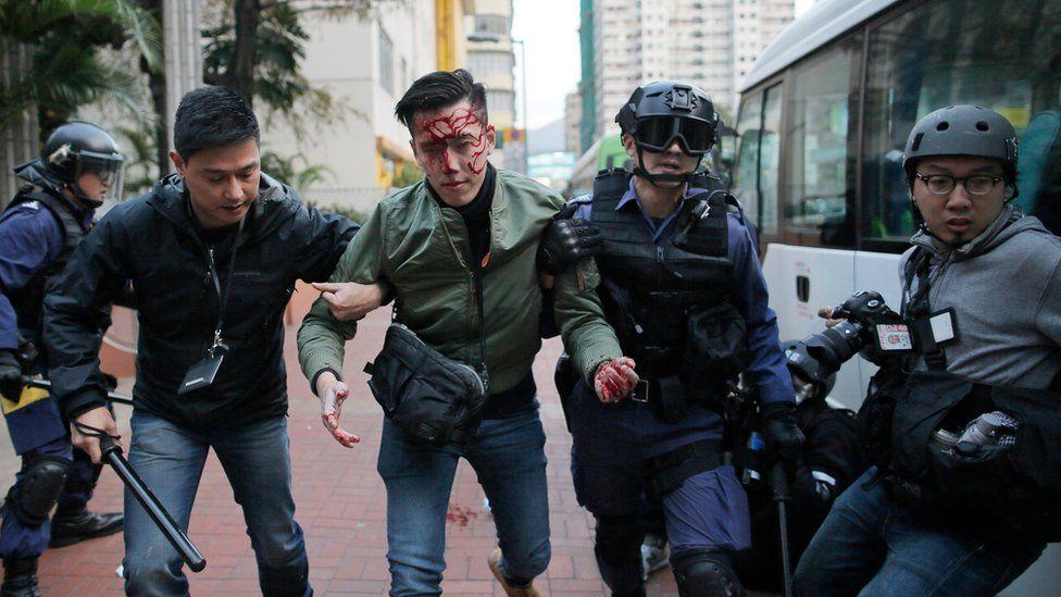 Injured man being led away by police