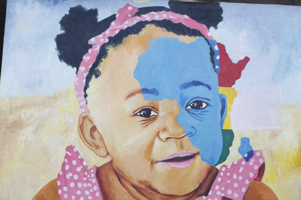 A mural depicting a child with vitiligo