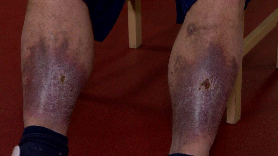 Colin McNair legs