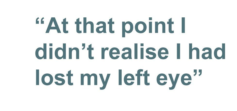 Quotebox: At that point I didn't realise I had lost my left eye