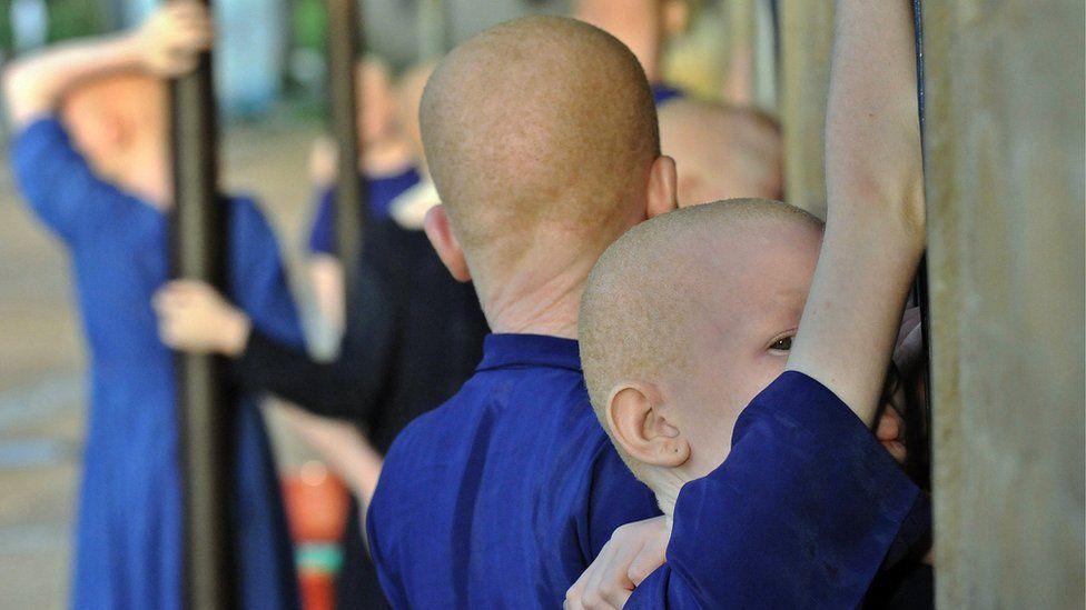 Albino children in Tanzania