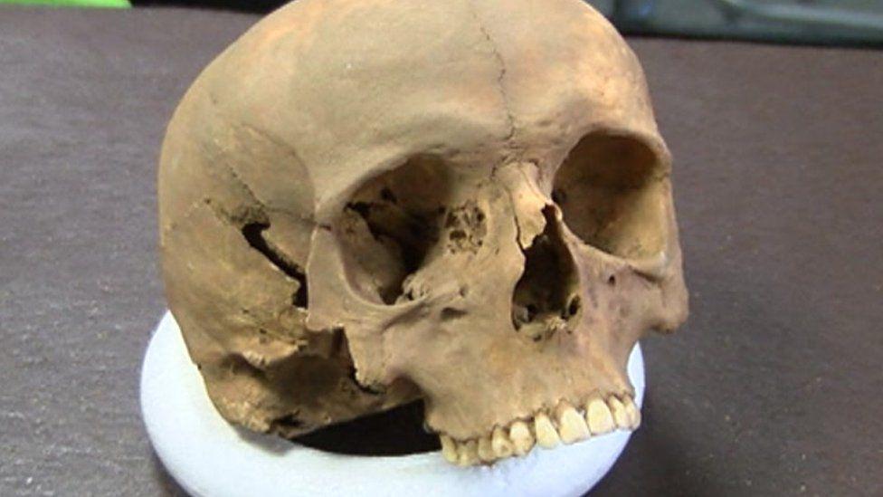 Skull of Richard de W'Peton, who died 17 April 1317