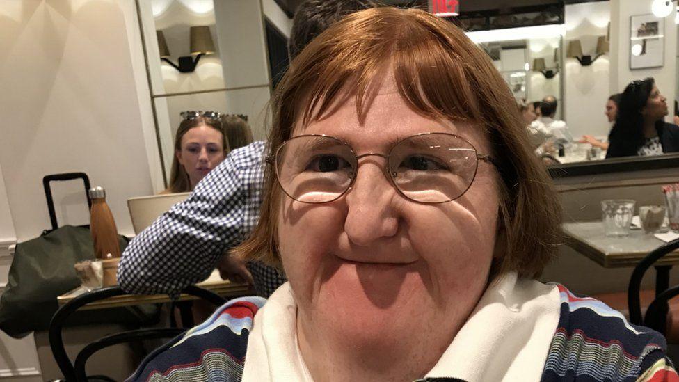 Girl selfie ugly Woman who