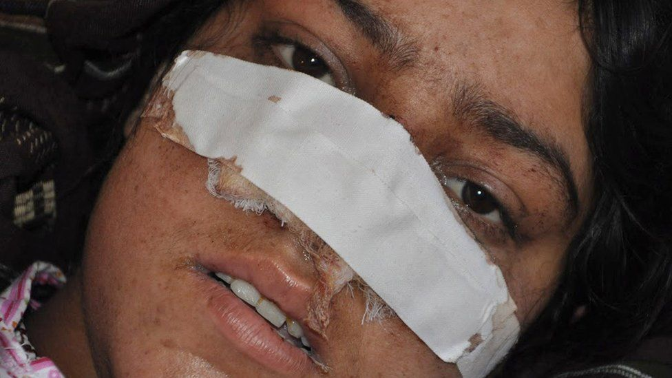 Reza Gul fled the abuse, but returned after assurances she would be treated well