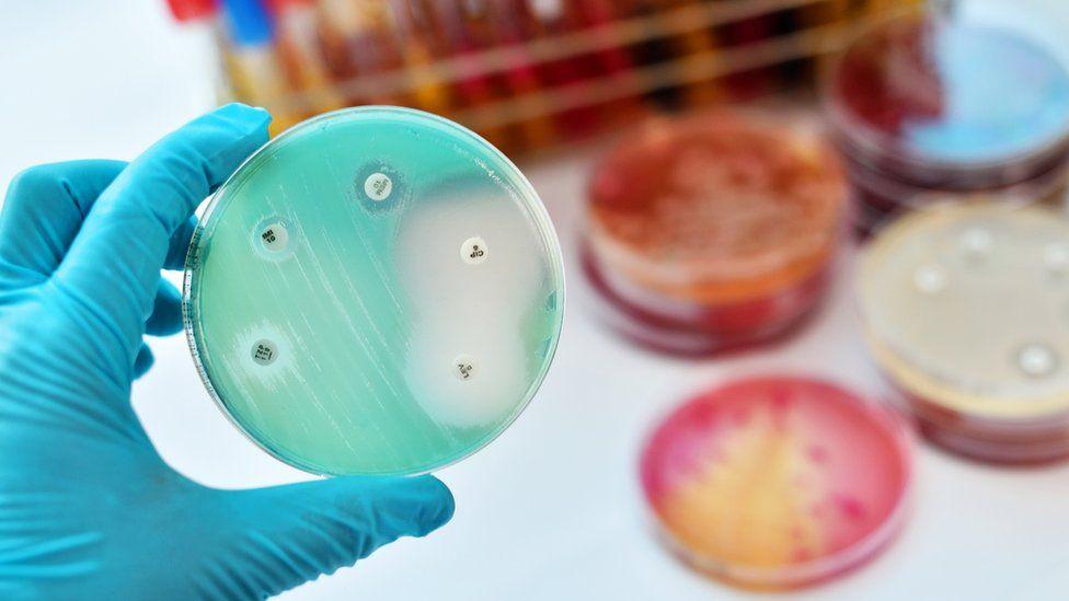 Petri dish with bacteria