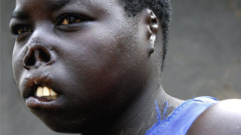 A former Ugandan abductee of the Lord's Resistance Army in 2005 when she was 17, bears the scars of her encounter