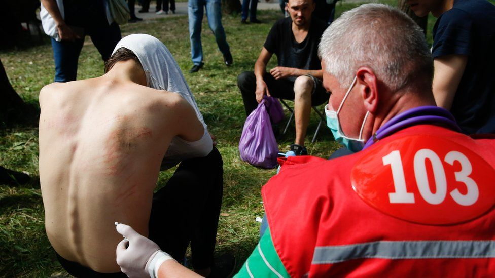Doctors provide medical treatment to people, who were reportedly tortured and beaten by the police, after being released from a detention center in Minsk, Belarus, 14 August 2020