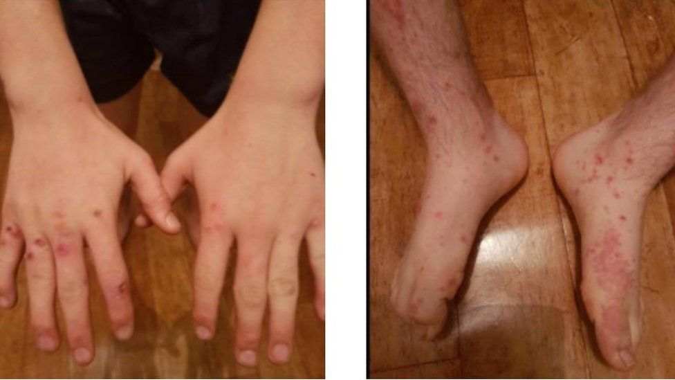 Cowpox lesions on the boy's hand and feet