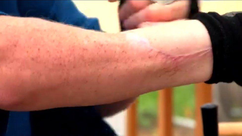 fotos de infecciones en las piernas