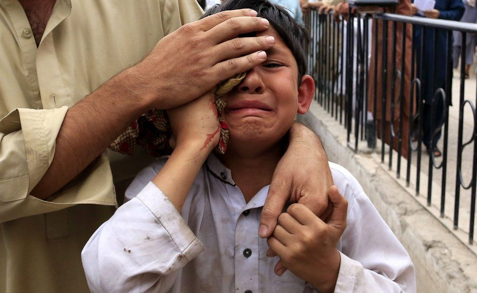 A boy who was injured in an earthquake cries outside a hospital in Peshawar, Pakistan, 10 April 2016