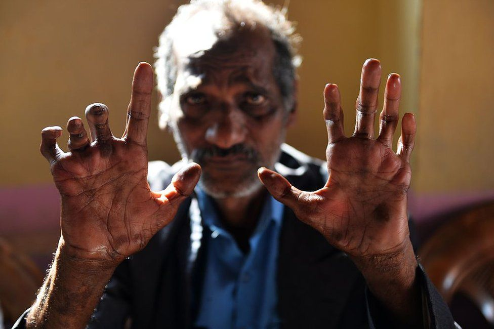 In this photograph taken on March 11, 2015, cured leprosy patient Shiv Shankar Tiwari, 62, shows his disfigured hands in a leprosy colony in New Delhi.