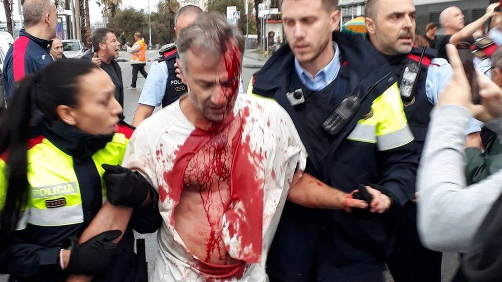 Eyewitness photo showing man with injury to his head and blood running down his face and body, ripped white T-shirt