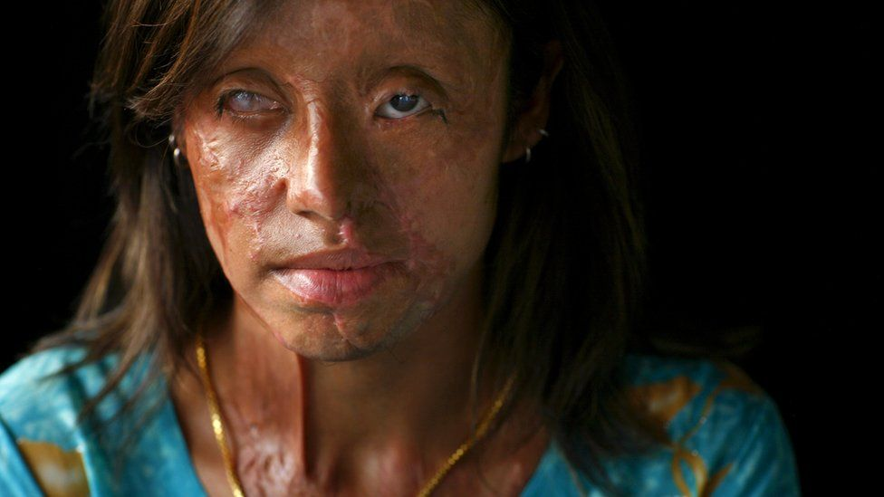 Saira Liaqat, 22, a victim of acid violence who was burned 4 years ago, poses in Islamabad, June 11, 2007