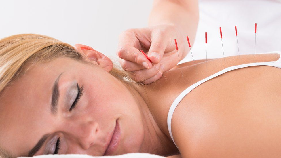 A woman having acupuncture