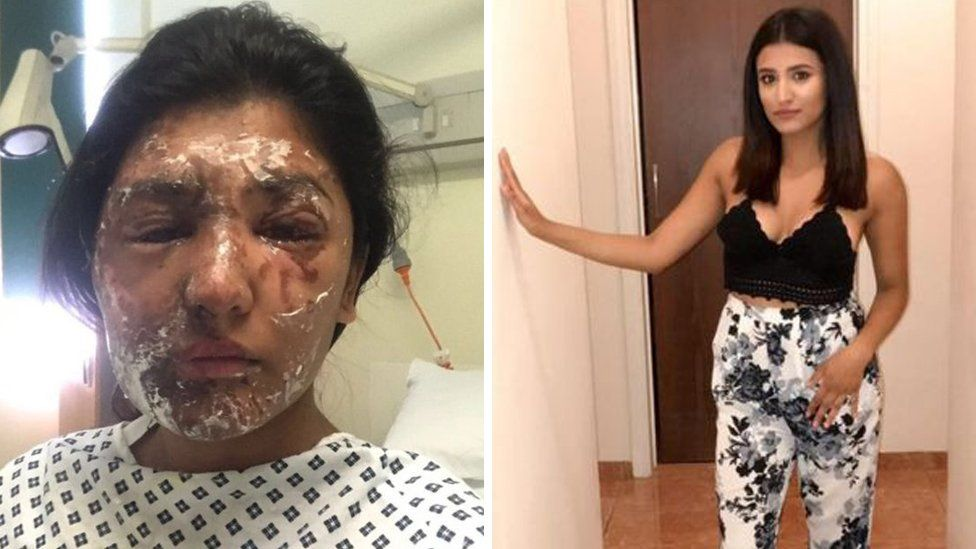 Resham Khan acid attack victim