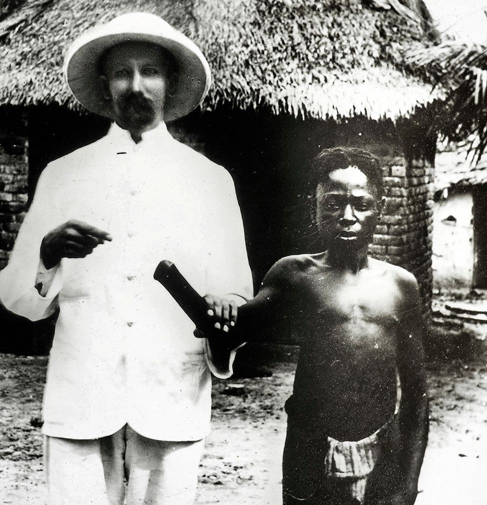 Missionaries documented amputations while investigating abuses committed in Congo Free State