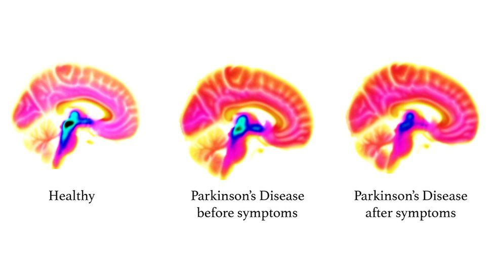 Brain imaging shows loss in serotonin function (blue/black areas) as Parkinson's disease progresses